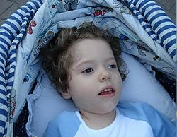 Эпилепсия у ребенка