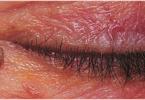 dermatology3