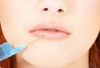 Контурная пластика губ c Bellezza – подробности самой доступной и быстрой п ...