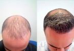 Лечение облысения в турецкой клинике Hairline Clinic